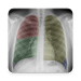 Chest X-Ray And Pathology